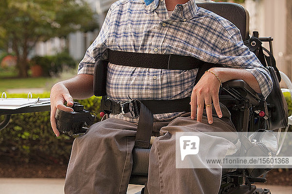 Man with Duchenne muscular dystrophy sitting in a motorized wheelchair using power controller with degenerated hands