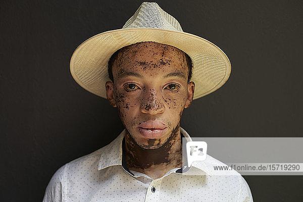 Porträt eines jungen Mannes mit Vitiligo  der einen Hut trägt