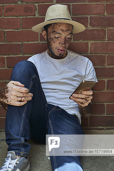 Portrait of young man with vitiligo wearing a hat  checking his phone sitting on the floor