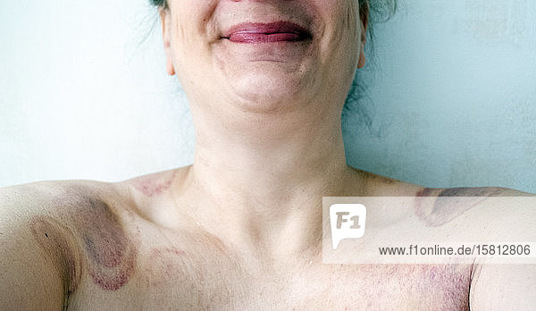 Nahaufnahme von Hals und Schultern der nackten Frau  bedeckt mit Schröpfmarken.
