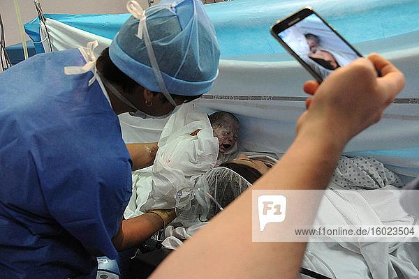 Geburt von Zwillingen durch Kaiserschnitt