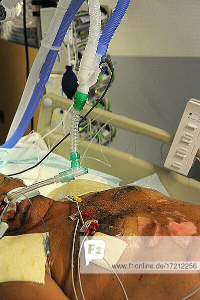 Medizinische Intensivstation covid-19