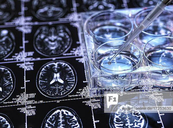 Petri dish on brains can