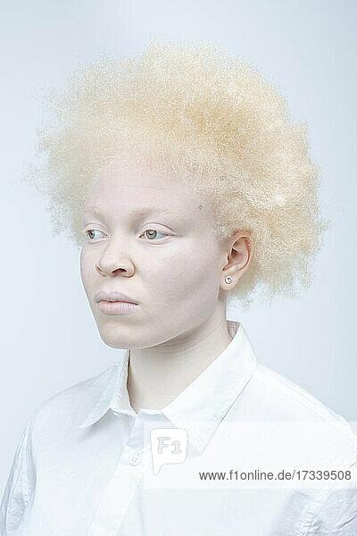 Studio portrait of albino woman in white shirt