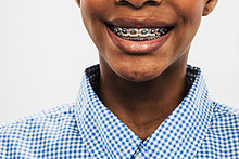 Teenagermädchen mit Zahnspange, abgeschnitten